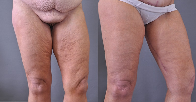 Arm Lift Scar 6 Months : Brachioplasty arm lift and thigh beforeandafterimages